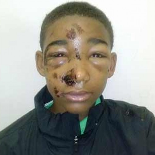 Cops Beat 14-yr-old Boy, Claims Mother  — Cops Deny It