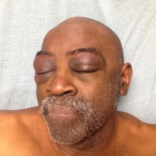 "Cops Beat Elderly Deaf Man for ""Not Following Orders"" He Couldn't Hear"