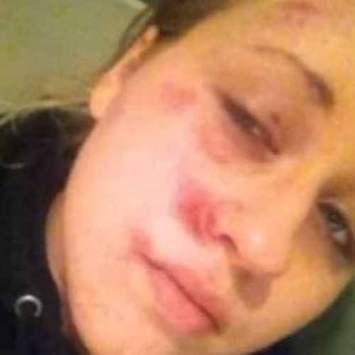 Teenage Girl Tries to See Her Boyfriend in Ambulance, Cop Pounds Her Head Into Ground