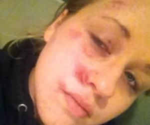 Kayla wanted help from 911 and she wanted to be with her loved one. Instead her face was pounded into the ground by a police officer.