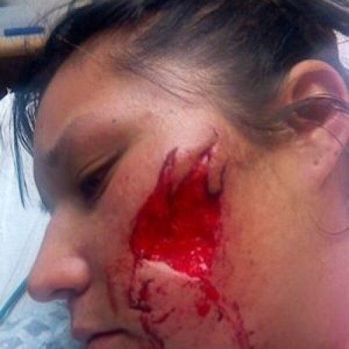 "K9 Cop Stops Woman for ""Speeding,"" Attack Dog Rips Flesh Off Her Face"