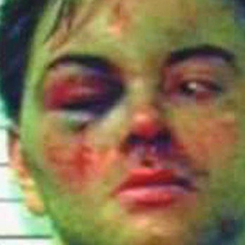 "Cop Breaks His Hand While Punching Mentally Ill Man's Face, So Man Gets Charged With ""Assault"""