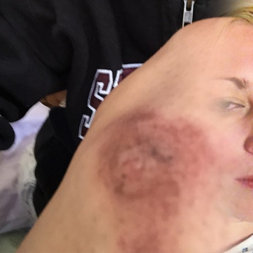 Epileptic woman calls 9-1-1 for help, beaten when seizures mistaken for 'resisting arrest'