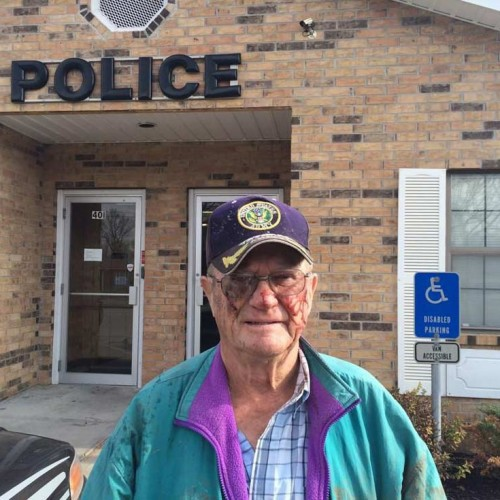 80-Yr-Old Army Veteran Who Survived Cancer Now Beaten to a Pulp By Cops, Ribs Broken