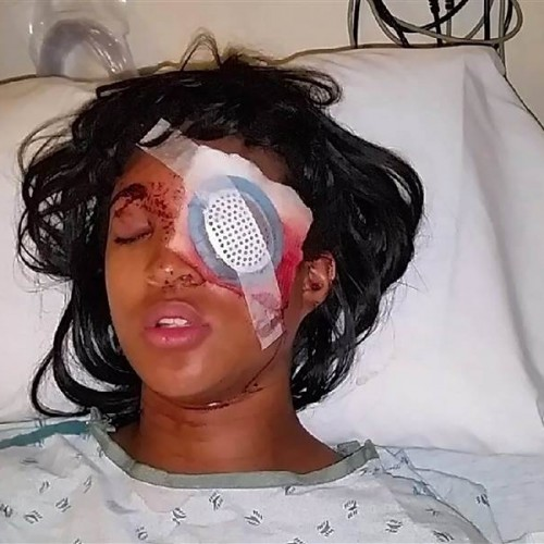 Pregnant Mother Loses Her Eye After Ferguson Cop Opens Fire on Her With High-Velocity Bean Bag Round
