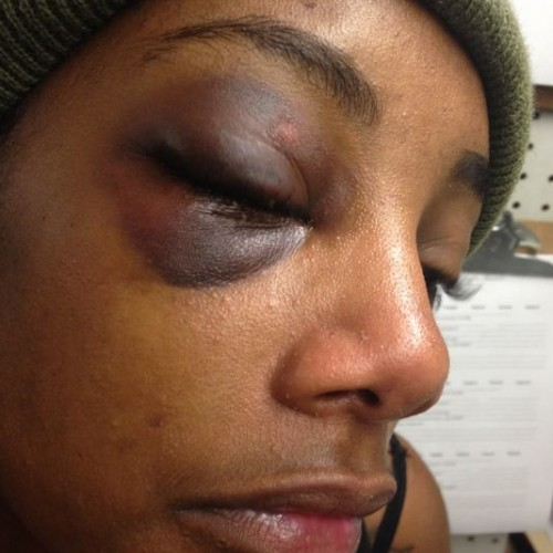 Cop Breaks Handcuffed Girl's Bones in Eye Socket, Will Not Face Any Criminal Charges