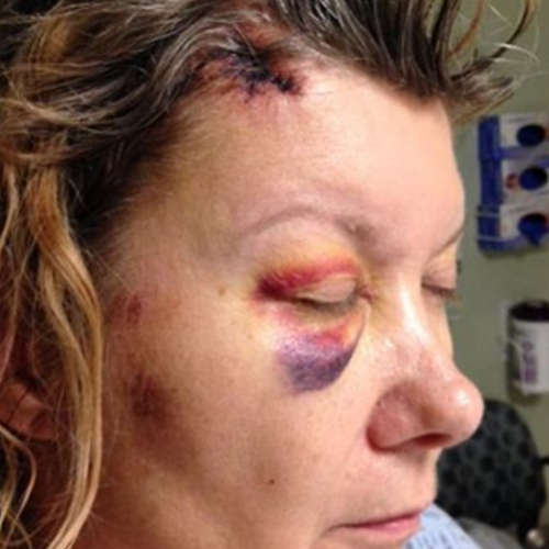 "Grandmother's Skull Fractured by Cop, Cop Claims She Caused Herself to Fracture Her Own Skull for ""Disobeying"""