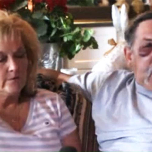 Road Rage Cop Pulls Gun on Elderly Couple, Pounds Husband's Face and Shatters His Teeth Out