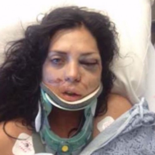 "Cops Slam Woman's Face and Say She ""Punched"" Them, Get Refuted by Video"