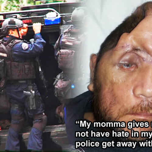 This Man Wants You to Know What It's Like to Be Shot in the Head by Police