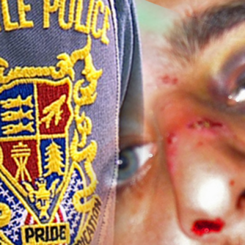 Noise-Hating Cops Beat Copwatching Student, Receive FBI Civil Rights Investigation