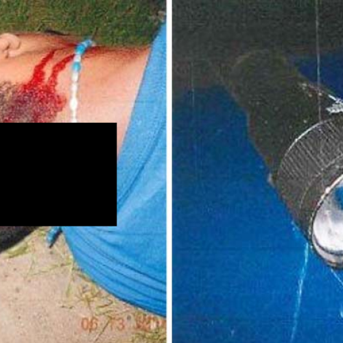 Cop Beats Innocent Child So Gruesomely With Flashlight He is Now Permanently Disabled