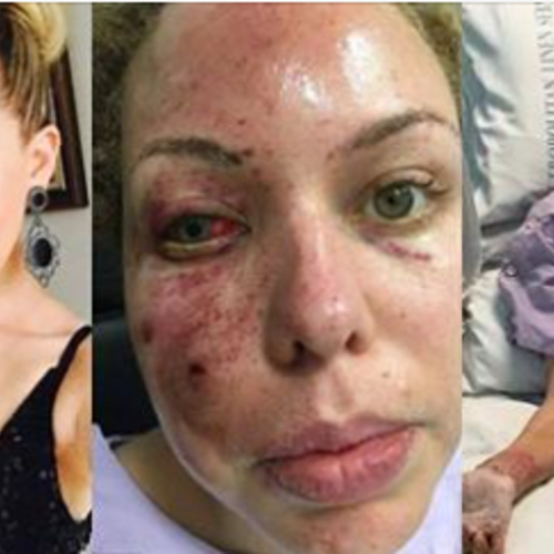 Miss Australia Left Disfigured Because Cops Threw a Flashbang Grenade into Her Bed as She Slept