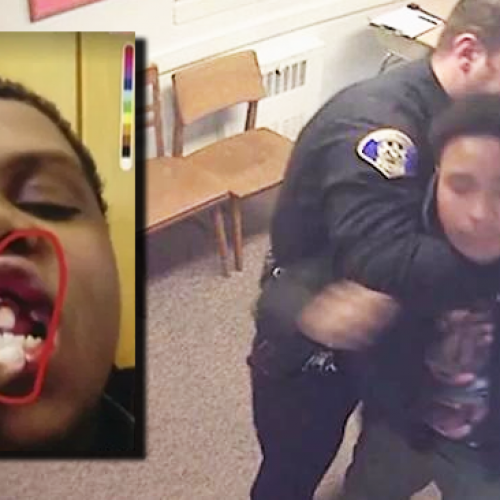 Cop Chokes 14yo Child at School, Knocks His Teeth Out