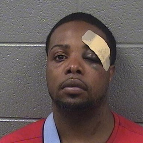 Chicago PD Investigate After Video Shows Cop Hitting Man in the Head