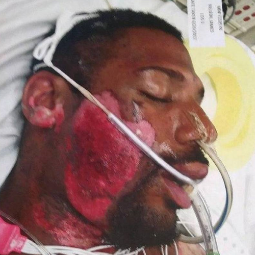 Sacramento Man Suffers Severe Burns While Being Held on Hot Pavement During Arrest