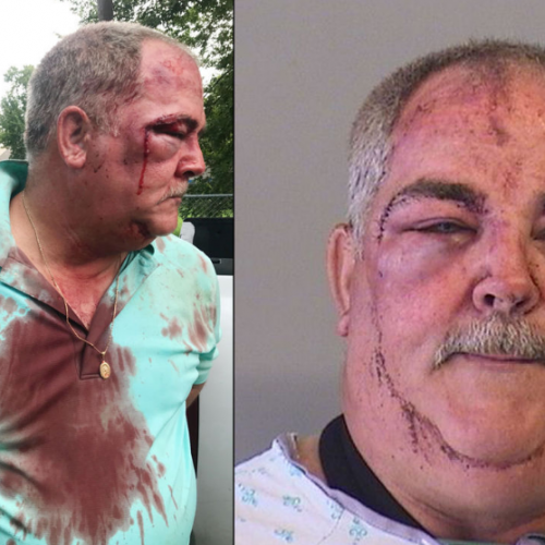 Man Beaten by Police During Arrest Says he Never Assaulted Officers – He Just Wanted to Get to His Property