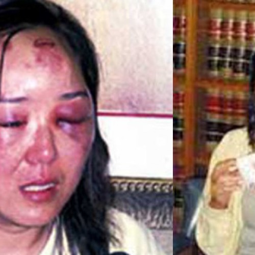 Chinese Tourist Awarded $461,000 for Brutal Beating She Received at Hands of US Border Agent