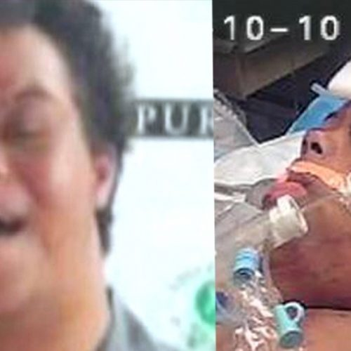 [WATCH] Palm Beach Sheriff Settles for $500,000 for Down Syndrome Teen They Shot Down