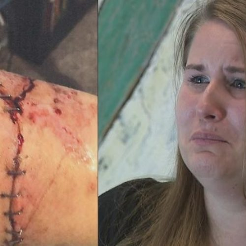 [WATCH] Woman Bitten by Police Canine Sues Newark Police Department