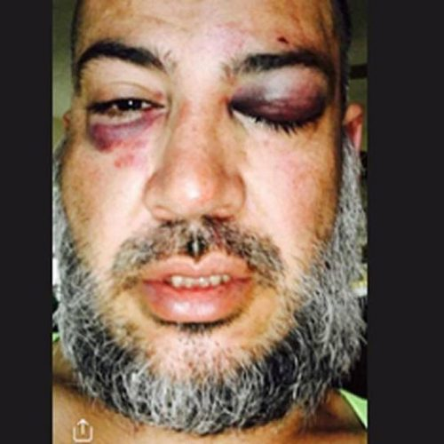 Gay Man Called Police to Report Suspicious Activity Cops Arrive and Severely Beat Him