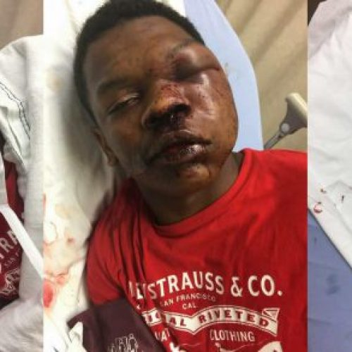 WATCH: 17-Year-Old Boy Brutally Beaten By Alabama Police While in Handcuffs