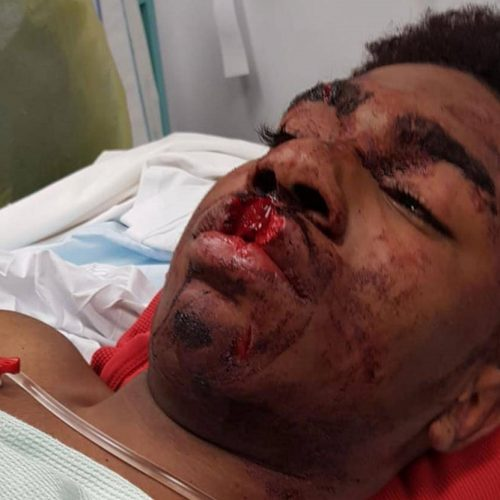 Teenager Who Was Seriously Injured During Police Chase Mistaken For Someone Else