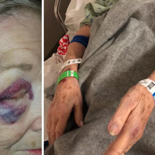 84 Year Old Woman Injured After Arizona Police Throw Her to the Ground While Looking for Suicidal Man