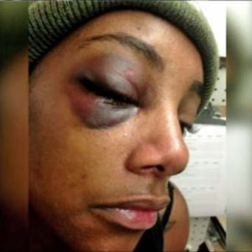 WATCH: Seattle Police Officer Fired for Punching Drunk Handcuffed Woman