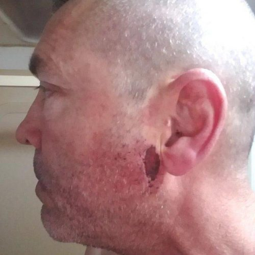 Case of Pearl River Veteran Beaten by St. Tammany Parish Deputies Turned Over to Feds