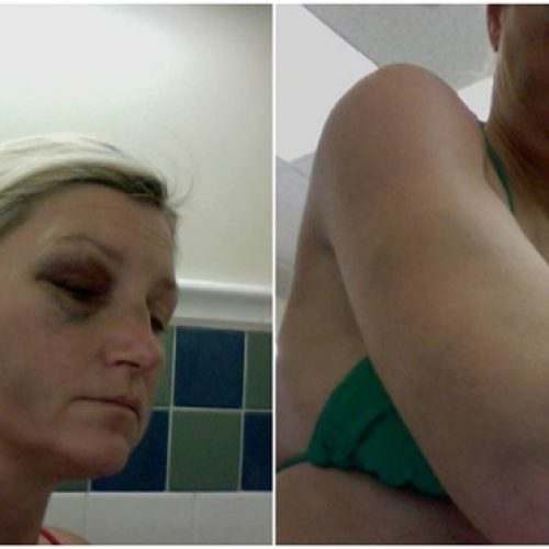 Broward Deputies Sued After Beating Jailed Woman Who Asked for Tampon