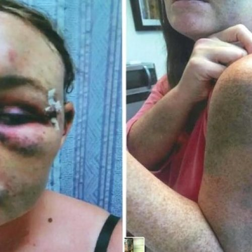 Woman Says Fort Lauderdale Cops Beat Her After She Testified in Brutality Case