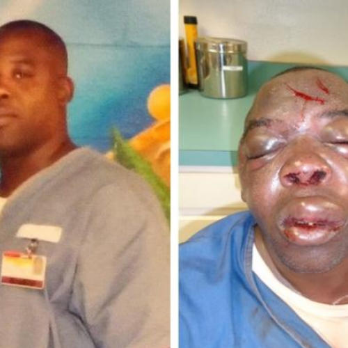 Inmate Beating Puts Florida Prison Brutality in Spotlight