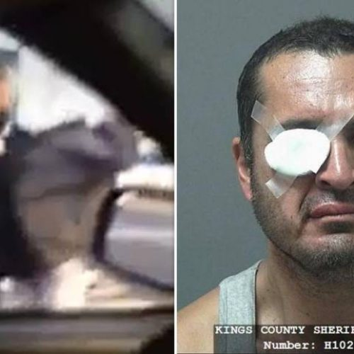 WATCH: Cop Knocks Man Off Bicycle and Then Beats Him So Bad He Loses Sight in His Right Eye