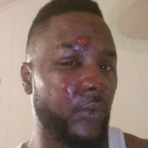 Mississippi Cops Fired For Repeatedly Kicking Man In The Face