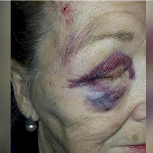 WATCH: 84-Year-Old Woman Sues Arizona Police Citing Excessive Force